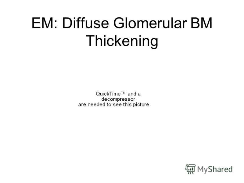 EM: Diffuse Glomerular BM Thickening