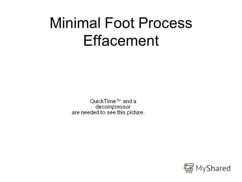 Minimal Foot Process Effacement
