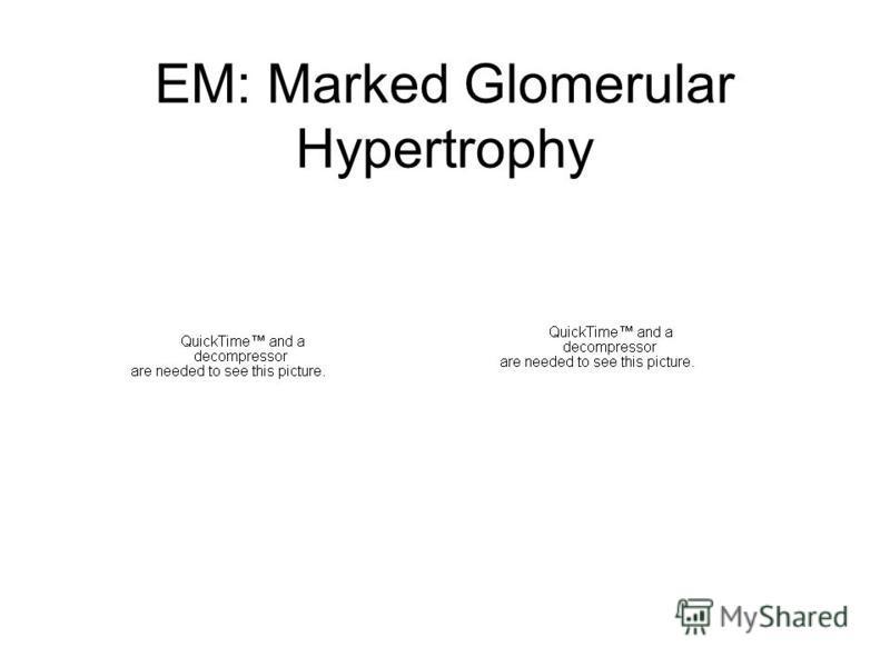 EM: Marked Glomerular Hypertrophy