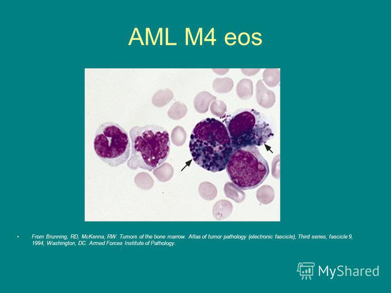 AML M4 eos From Brunning, RD, McKenna, RW. Tumors of the bone marrow. Atlas of tumor pathology (electronic fascicle), Third series, fascicle 9, 1994, Washington, DC. Armed Forces Institute of Pathology.