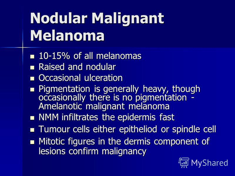 Nodular Malignant Melanoma 10-15% of all melanomas 10-15% of all melanomas Raised and nodular Raised and nodular Occasional ulceration Occasional ulceration Pigmentation is generally heavy, though occasionally there is no pigmentation - Amelanotic ma