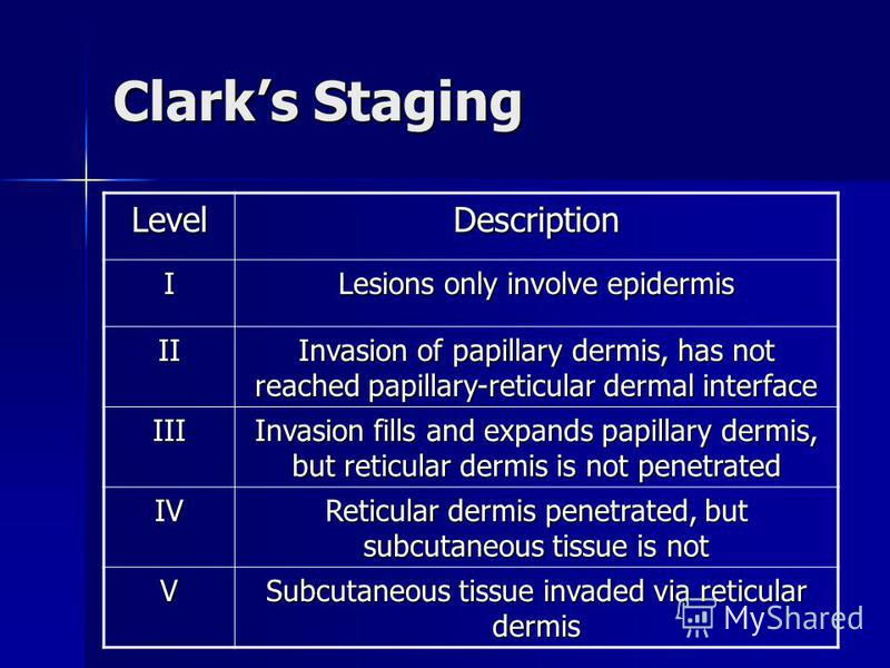 Clarks Staging LevelDescription I Lesions only involve epidermis II Invasion of papillary dermis, has not reached papillary-reticular dermal interface III Invasion fills and expands papillary dermis, but reticular dermis is not penetrated IV Reticula