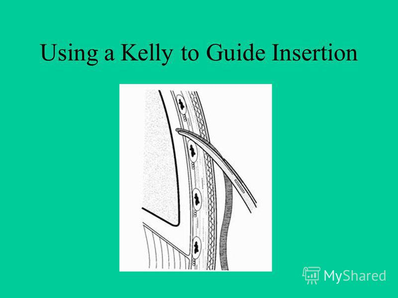 Using a Kelly to Guide Insertion
