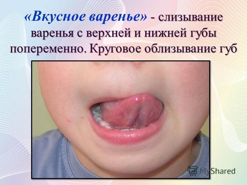 - слизывание варенья с верхней и нижней губы попеременно. Круговое облизывание губ «Вкусное варенье» - слизывание варенья с верхней и нижней губы попеременно. Круговое облизывание губ