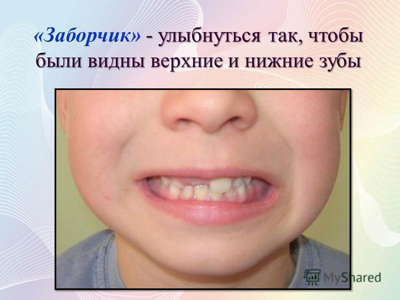 - улыбнуться так, чтобы были видны верхние и нижние зубы «Заборчик» - улыбнуться так, чтобы были видны верхние и нижние зубы