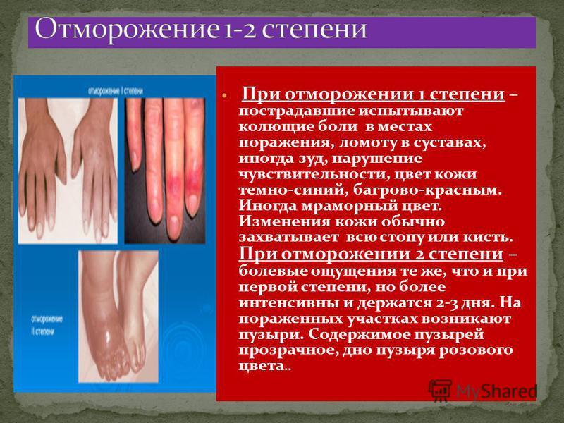 При отморожении 1 степени – пострадавшие испытывают колющие боли в местах поражения, ломоту в суставах, иногда зуд, нарушение чувствительности, цвет кожи темно-синий, багрово-красным. Иногда мраморный цвет. Изменения кожи обычно захватывает всю стопу