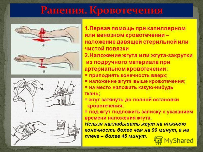 1. Первая помощь при капиллярном или венозном кровотечении – наложение давящей стерильной или чистой повязки 2. Наложение жгута или жгута-закрутки из подручного материала при артериальном кровотечении: = приподнять конечность вверх; = наложение жгута