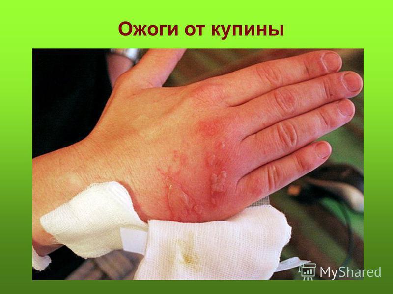 Чем намазать руку при ожоге кипятком в домашних условиях