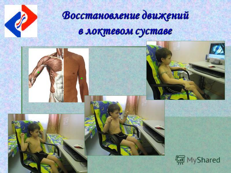 Восстановление движений в локтевом суставе