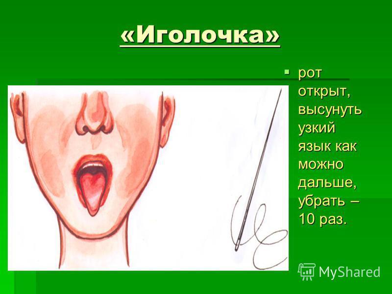 «Иголочка» рот открыт, высунуть узкий язык как можно дальше, убрать – 10 раз. рот открыт, высунуть узкий язык как можно дальше, убрать – 10 раз.