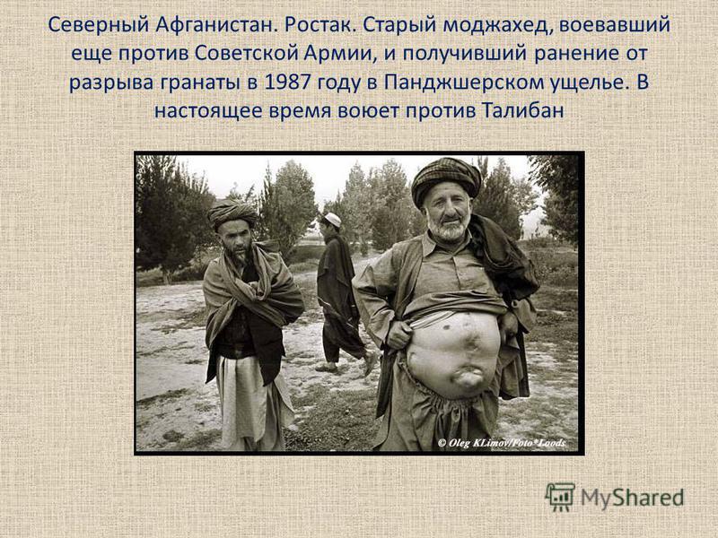 Северный Афганистан. Ростак. Старый моджахед, воевавший еще против Советской Армии, и получивший ранение от разрыва гранаты в 1987 году в Панджшерском ущелье. В настоящее время воюет против Талибан