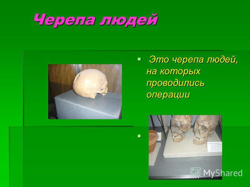 Черепа людей Это черепа людей, на которых проводились операции Это черепа людей, на которых проводились операции