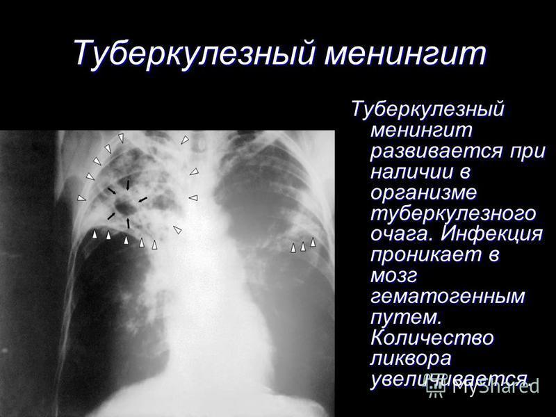 Туберкулезный менингит развивается при наличии в организме туберкулезного очага. Инфекция проникает в мозг гематогенным путем. Количество ликвора увеличивается. Туберкулезный менингит