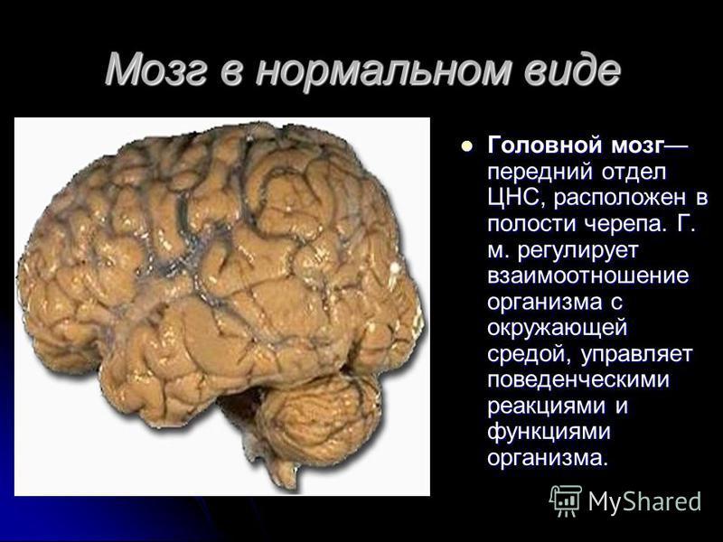 Мозг в нормальном виде Головной мозг передний отдел ЦНС, расположен в полости черепа. Г. м. регулирует взаимоотношение организма с окружающей средой, управляет поведенческими реакциями и функциями организма. Головной мозг передний отдел ЦНС, располож