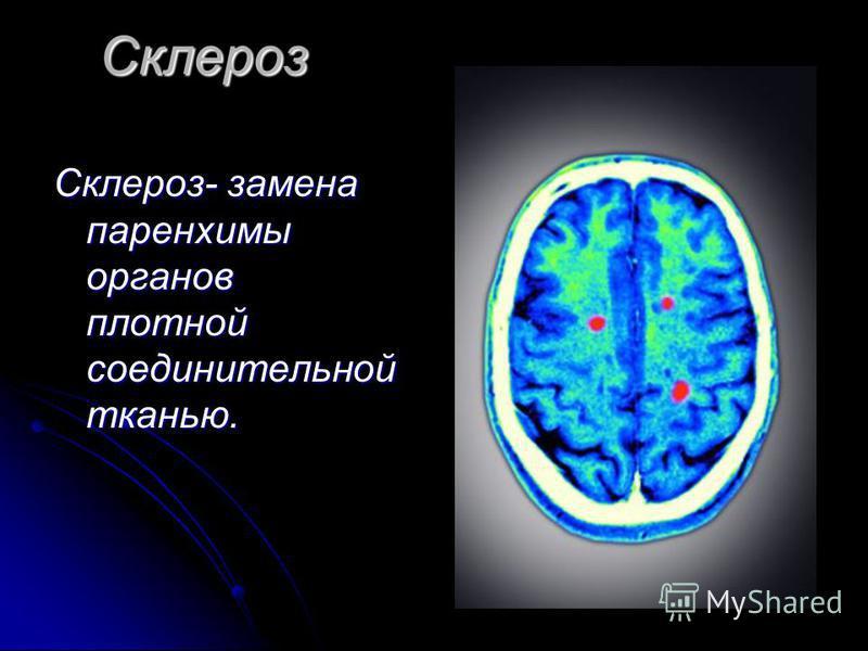 Склероз Склероз- замена паренхимы органов плотной соединительной тканью.