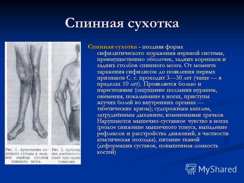 Спинная сухотка Спинная сухотка - поздняя форма сифилитического поражения нервной системы, преимущественно оболочек, задних корешков и задних столбов спинного мозга. От момента заражения сифилисом до появления первых признаков С. с. проходит 330 лет