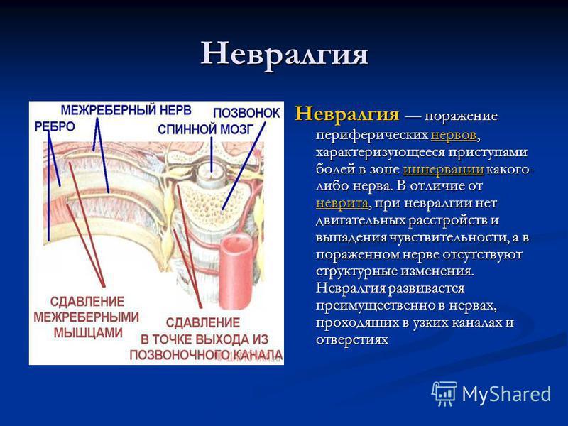 Невралгия Невралгия поражение периферических нервов, характеризующееся приступами болей в зоне иннервации какого- либо нерва. В отличие от неврита, при невралгии нет двигательных расстройств и выпадения чувствительности, а в пораженном нерве отсутств