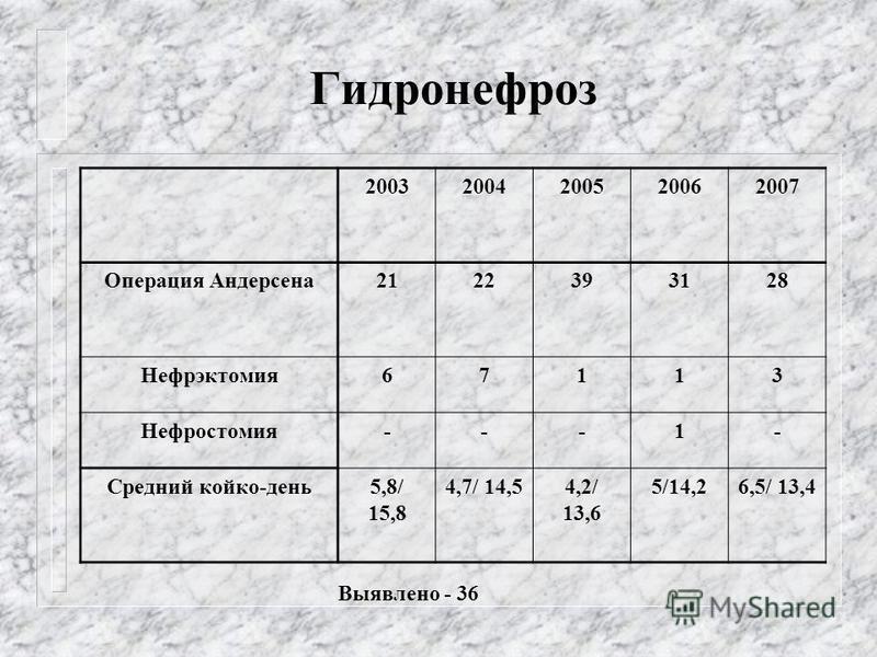 Гидронефроз 20032004200520062007 Операция Андерсена 2122393128 Нефрэктомия 67113 Нефростомия---1- Средний койко-день 5,8/ 15,8 4,7/ 14,54,2/ 13,6 5/14,26,5/ 13,4 Выявлено - 36