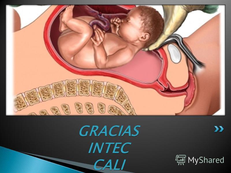 se confunde en muchos aspectos con la ginecología se confunde en muchos aspectos con la ginecología trata las enfermedades que son consecuencia del embarazo anómalo, trata las enfermedades que son consecuencia del embarazo anómalo, así como de la rec