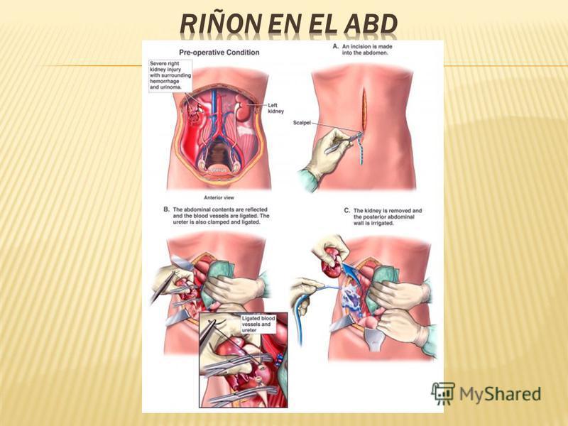 se aloja en el abdomen, tanto en su parte más alta (riñones y suprarrenales), como en la inferior. Los elementos que lo constituyen son: los riñones, los uréteres, la vejiga y la uretra. es el encargado de recoger de todo nuestro organismo los produc