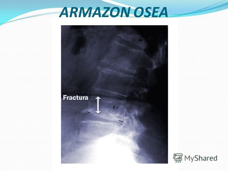 Armazón ósea En su mitad superior, la cavidad abdominal está sostenida por detrás por el raquis dorso lumbar y cerrada por delante por el cuadro óseo que constituye el reborde inferior de la parrilla costal. En su mitad inferior, la pelvis ósea está