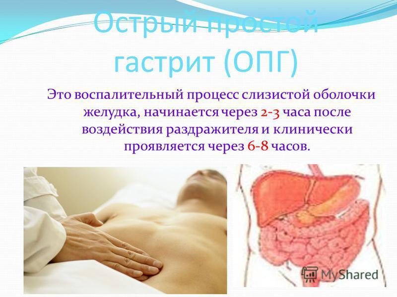Острый простой гастрит (ОПГ) Это воспалительный процесс слизистой оболочки желудка, начинается через 2-3 часа после воздействия раздражителя и клинически проявляется через 6-8 часов.