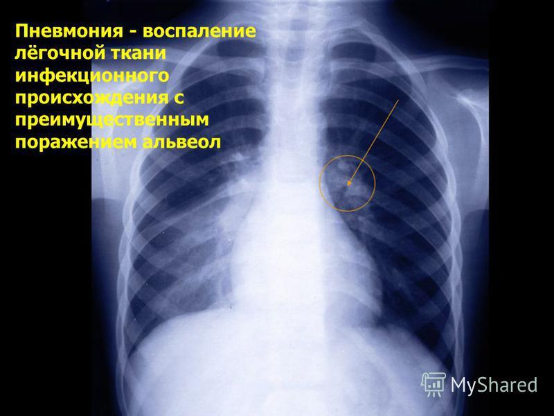 Пневмония - воспаление лёгочной ткани инфекционного происхождения с преимущественным поражением альвеол