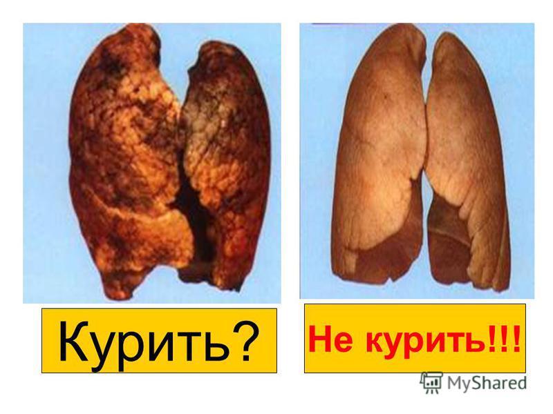 Курить? Не курить!!!