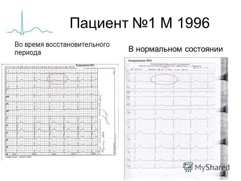 Пациент 1 М 1996 Во время восстановительного периода В нормальном состоянии
