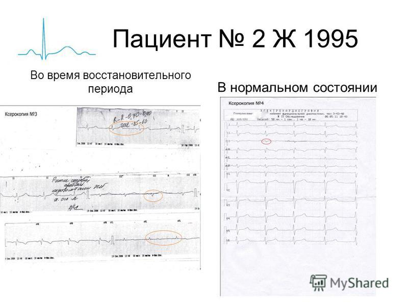 Пациент 2 Ж 1995 Во время восстановительного периода В нормальном состоянии