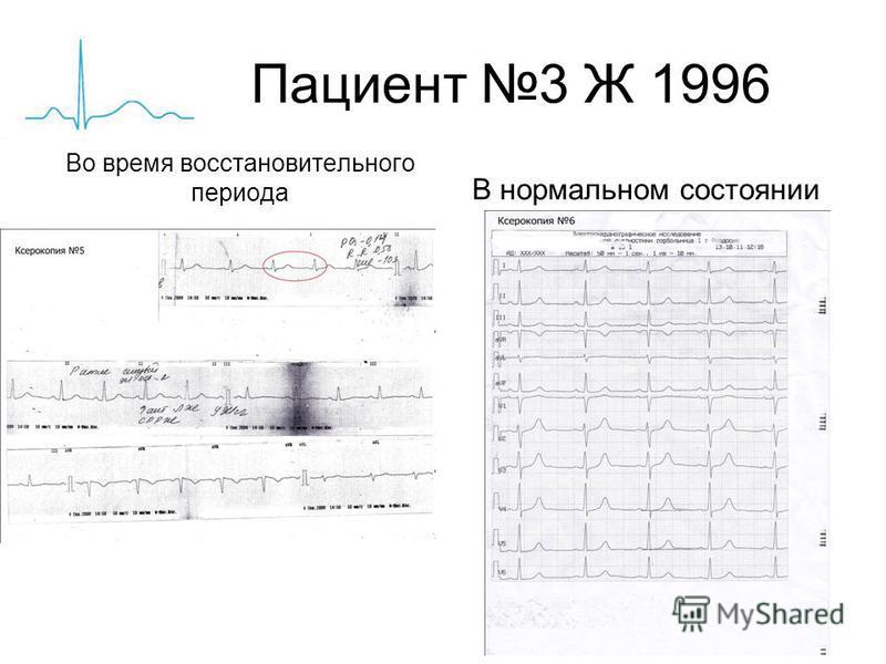 Пациент 3 Ж 1996 Во время восстановительного периода В нормальном состоянии