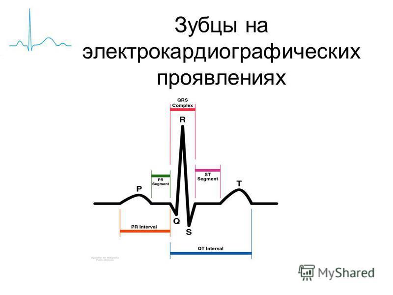 Зубцы на электрокардиографических проявлениях
