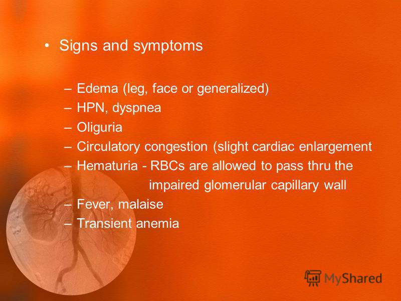 Signs and symptoms –Edema (leg, face or generalized) –HPN, dyspnea –Oliguria –Circulatory congestion (slight cardiac enlargement –Hematuria - RBCs are allowed to pass thru the impaired glomerular capillary wall –Fever, malaise –Transient anemia