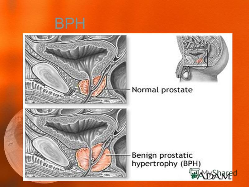 essays on benign prostate hyperplasia