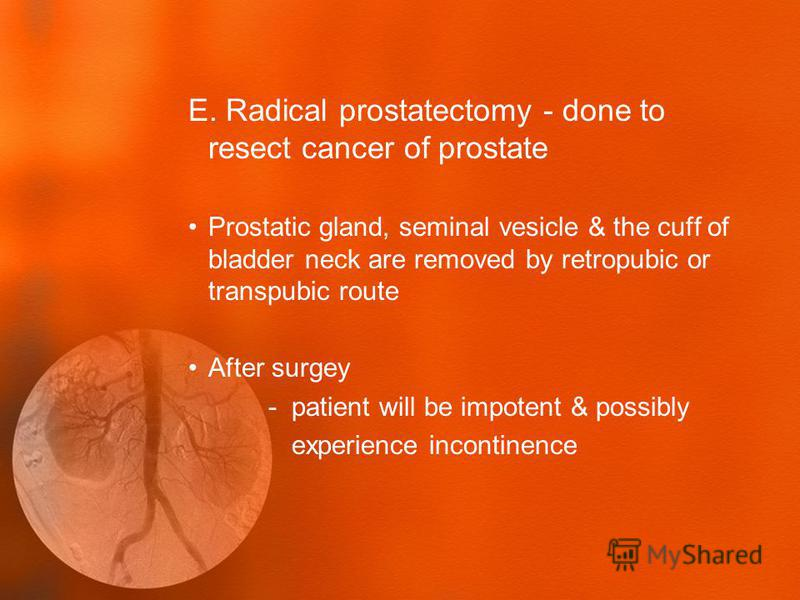 E. Radical prostatectomy - done to resect cancer of prostate Prostatic gland, seminal vesicle & the cuff of bladder neck are removed by retropubic or transpubic route After surgey - patient will be impotent & possibly experience incontinence