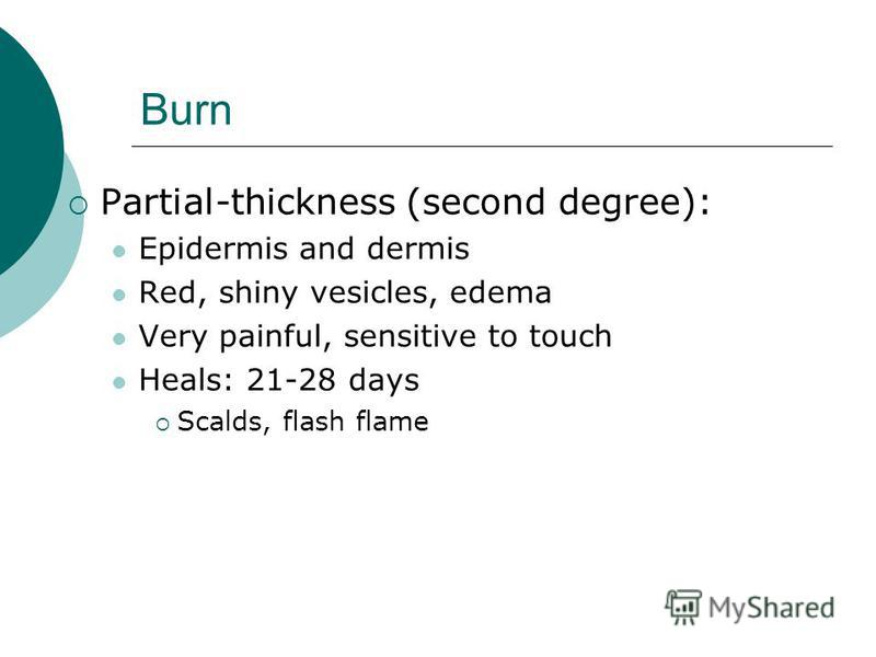 Burn Partial-thickness (second degree): Epidermis and dermis Red, shiny vesicles, edema Very painful, sensitive to touch Heals: 21-28 days Scalds, flash flame