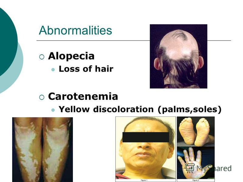 Abnormalities Alopecia Loss of hair Carotenemia Yellow discoloration (palms,soles)