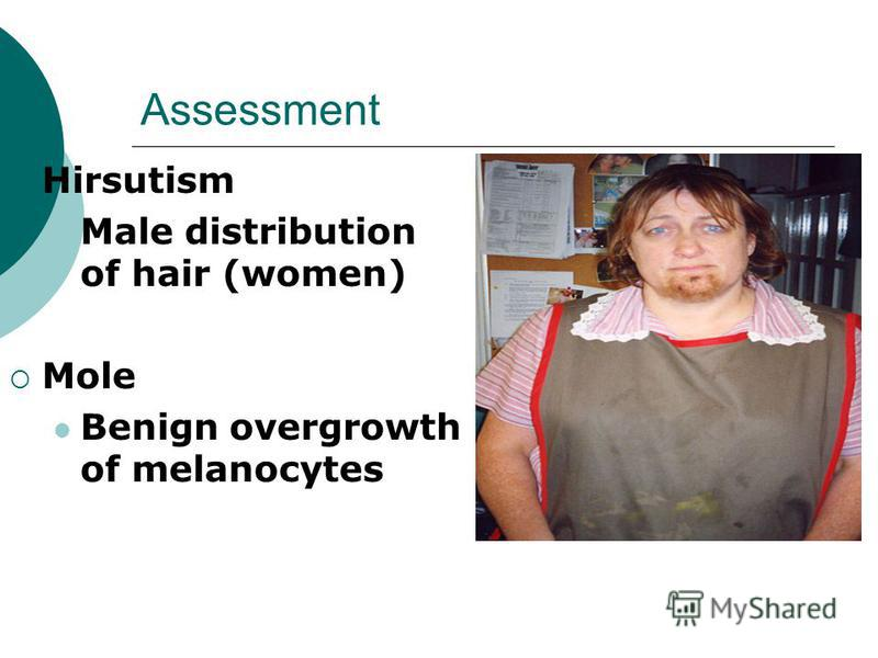 Assessment Hirsutism Male distribution of hair (women) Mole Benign overgrowth of melanocytes