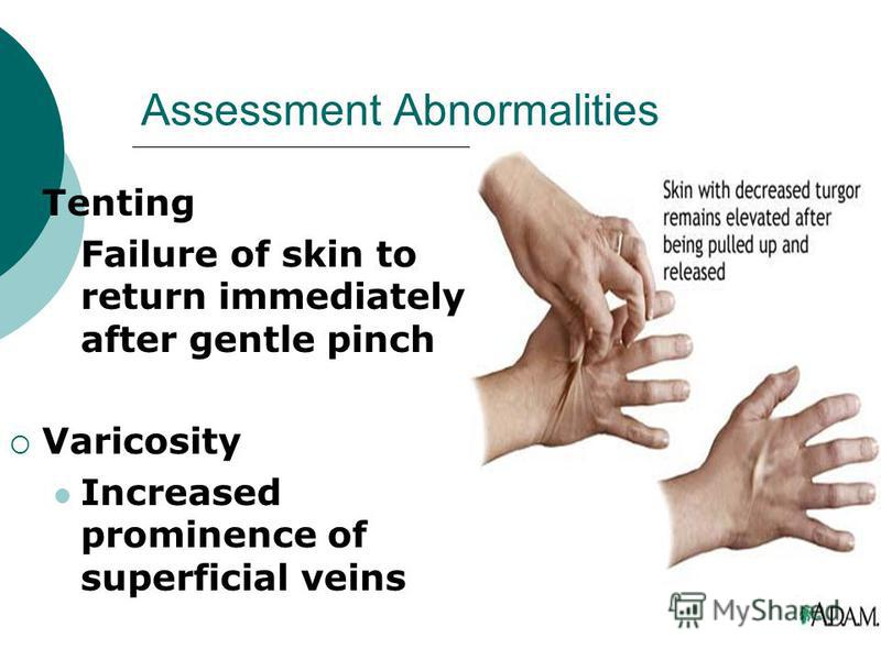 18 Assessment Abnormalities Tenting Failure of skin to return immediately after gentle pinch Varicosity Increased prominence of superficial veins  sc 1 st  MyShared.ru & ??????????? ?? ????:
