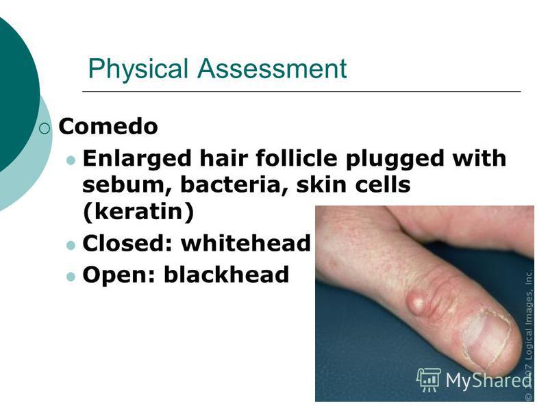 Physical Assessment Comedo Enlarged hair follicle plugged with sebum, bacteria, skin cells (keratin) Closed: whitehead Open: blackhead