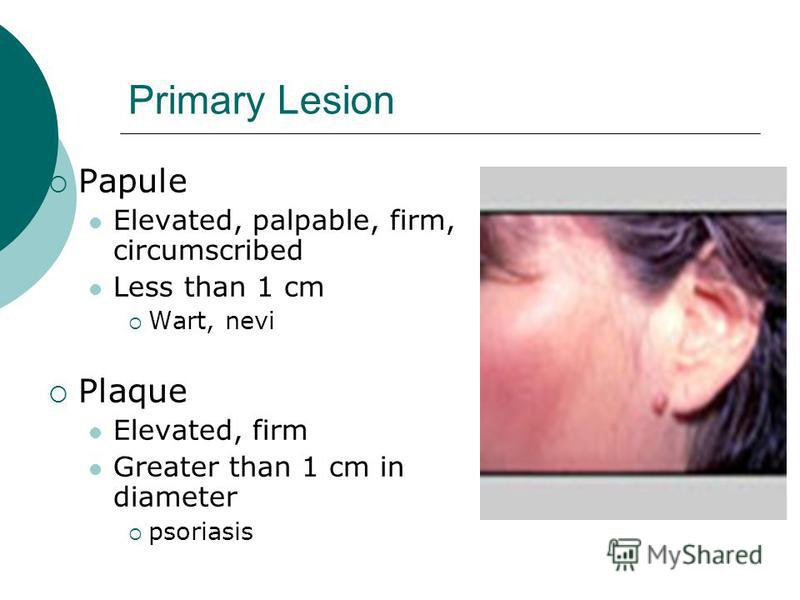 Primary Lesion Papule Elevated, palpable, firm, circumscribed Less than 1 cm Wart, nevi Plaque Elevated, firm Greater than 1 cm in diameter psoriasis