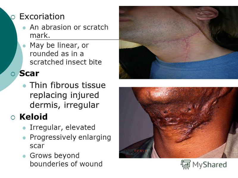 Excoriation An abrasion or scratch mark. May be linear, or rounded as in a scratched insect bite Scar Thin fibrous tissue replacing injured dermis, irregular Keloid Irregular, elevated Progressively enlarging scar Grows beyond bounderies of wound
