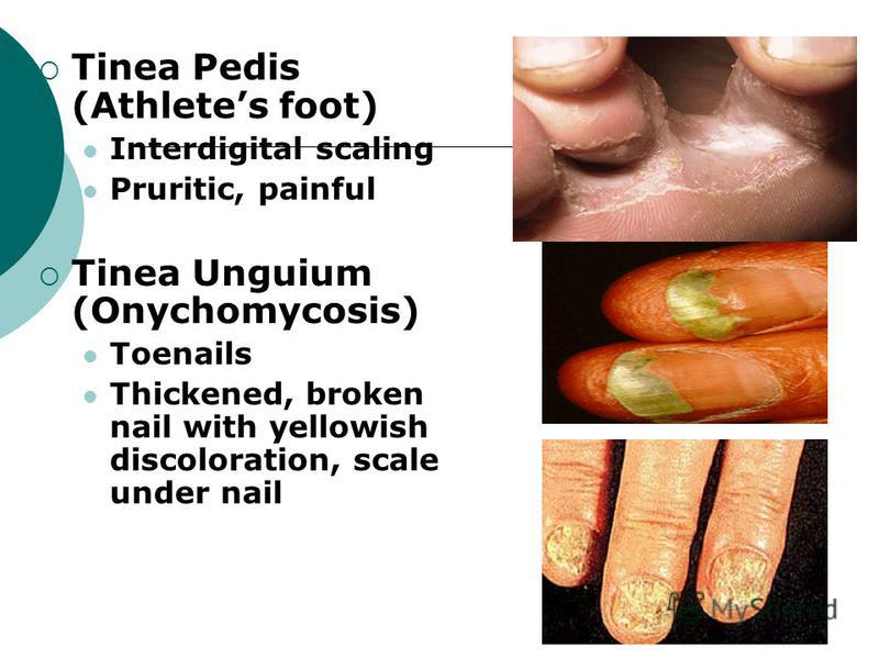 Tinea Pedis (Athletes foot) Interdigital scaling Pruritic, painful Tinea Unguium (Onychomycosis) Toenails Thickened, broken nail with yellowish discoloration, scale under nail