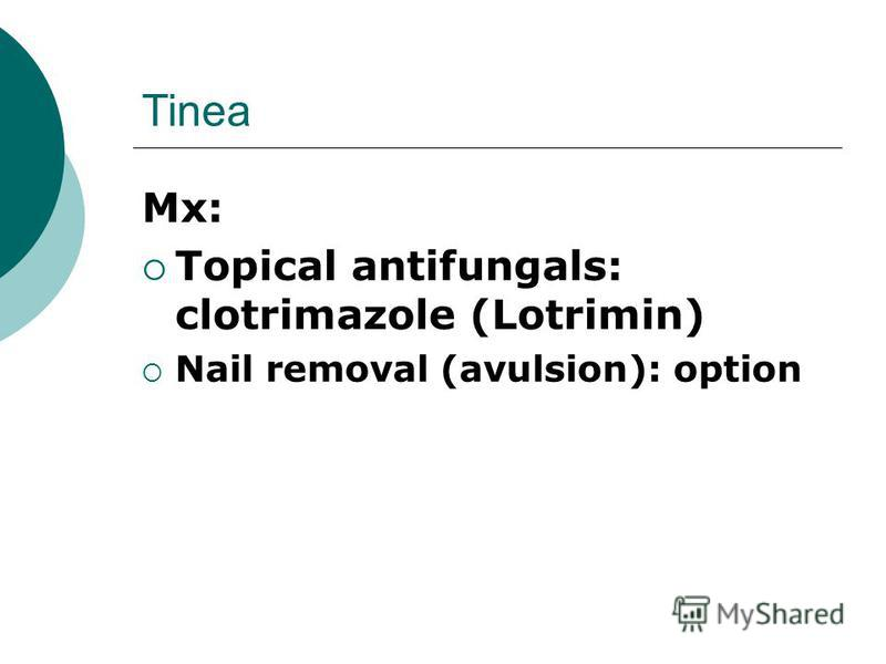 Tinea Mx: Topical antifungals: clotrimazole (Lotrimin) Nail removal (avulsion): option