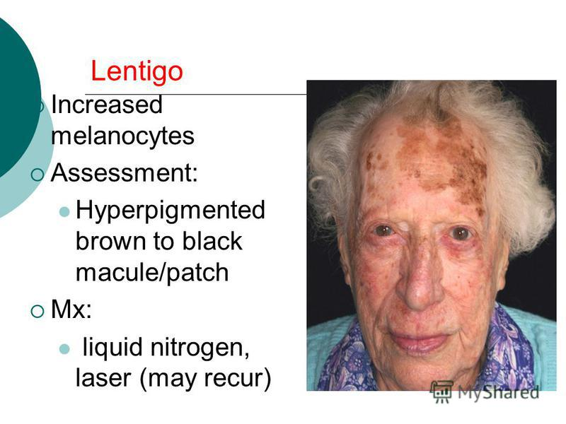 Lentigo Increased melanocytes Assessment: Hyperpigmented brown to black macule/patch Mx: liquid nitrogen, laser (may recur)