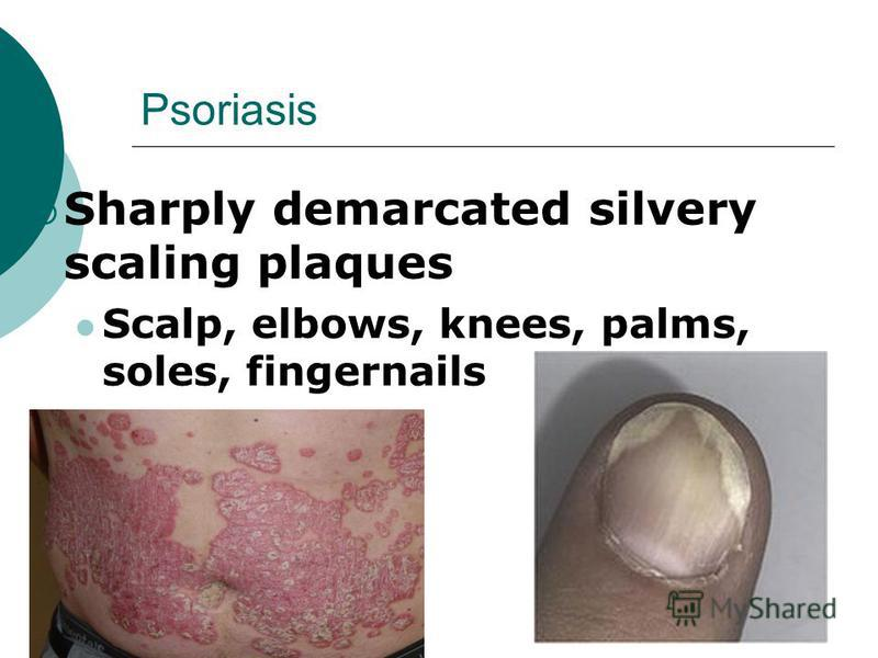 Psoriasis Sharply demarcated silvery scaling plaques Scalp, elbows, knees, palms, soles, fingernails