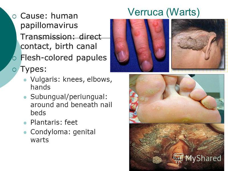 Verruca (Warts) Cause: human papillomavirus Transmission: direct contact, birth canal Flesh-colored papules Types: Vulgaris: knees, elbows, hands Subungual/periungual: around and beneath nail beds Plantaris: feet Condyloma: genital warts
