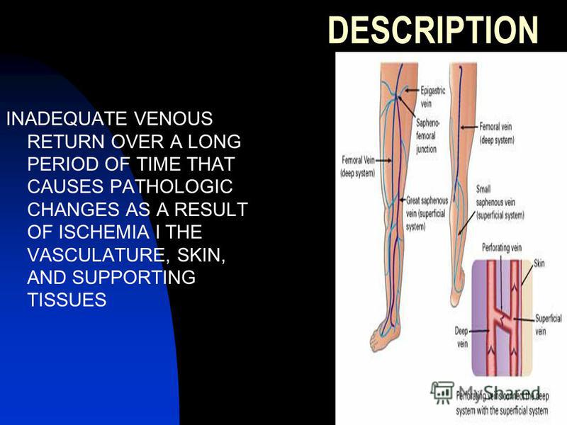 DESCRIPTION INADEQUATE VENOUS RETURN OVER A LONG PERIOD OF TIME THAT CAUSES PATHOLOGIC CHANGES AS A RESULT OF ISCHEMIA I THE VASCULATURE, SKIN, AND SUPPORTING TISSUES