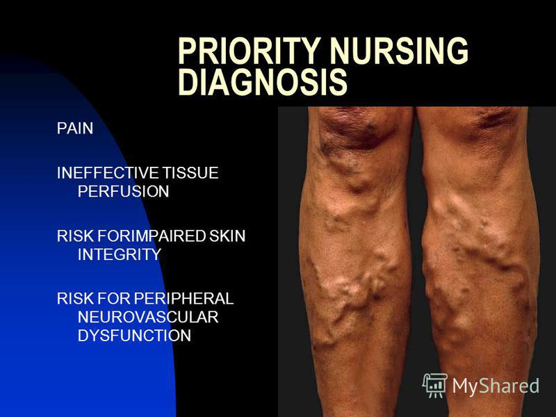 PRIORITY NURSING DIAGNOSIS PAIN INEFFECTIVE TISSUE PERFUSION RISK FORIMPAIRED SKIN INTEGRITY RISK FOR PERIPHERAL NEUROVASCULAR DYSFUNCTION