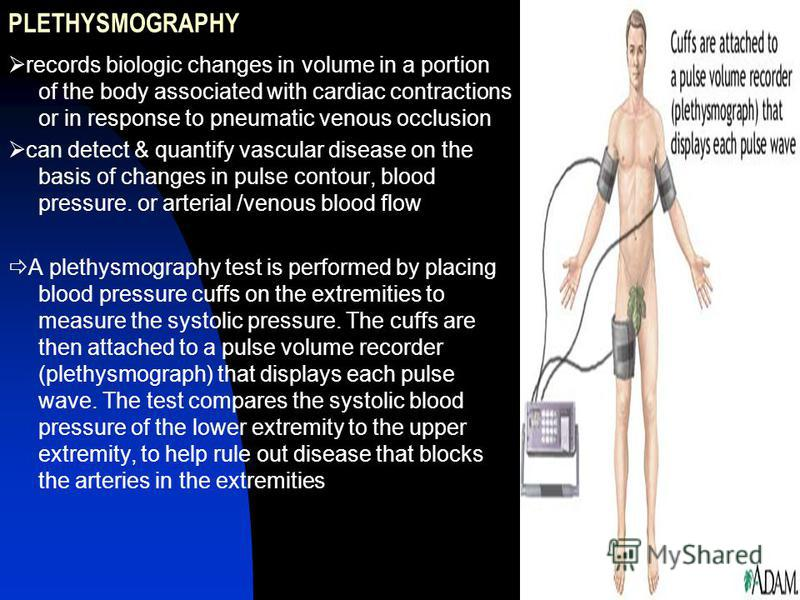 PLETHYSMOGRAPHY records biologic changes in volume in a portion of the body associated with cardiac contractions or in response to pneumatic venous occlusion can detect & quantify vascular disease on the basis of changes in pulse contour, blood press